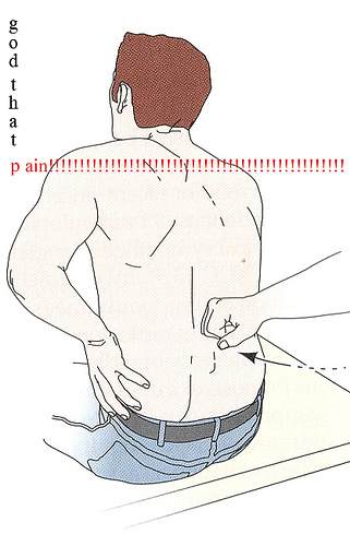 Lower Back Pain Left Side | Lower Right Back Pain ... - photo#46